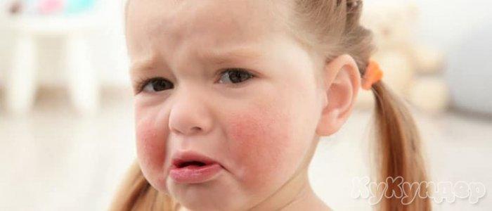 Мифы о детской аллергии, в которые верят все мамы